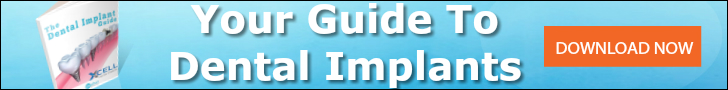 access to dental implant guide